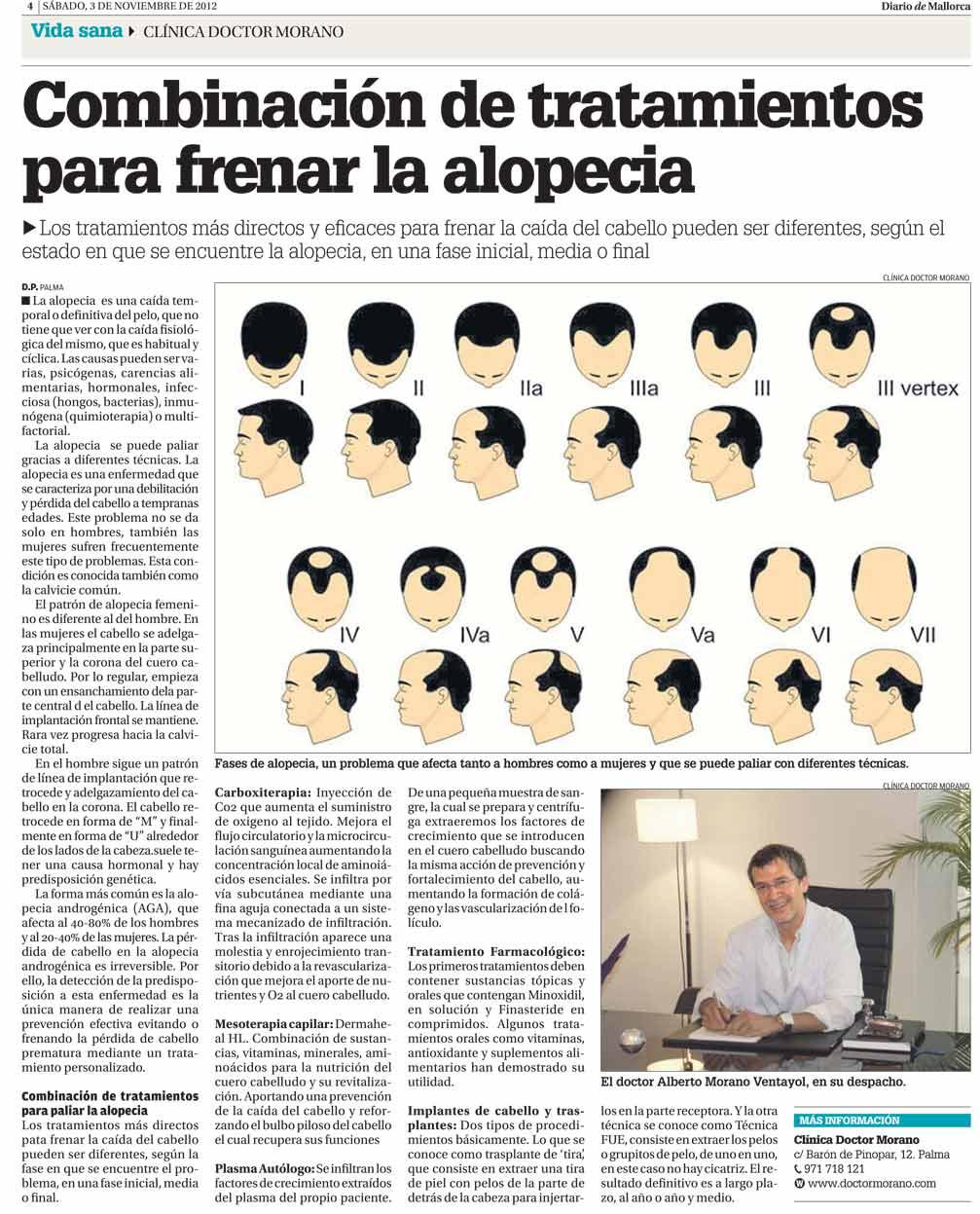 El colágeno contra la caída de los cabello