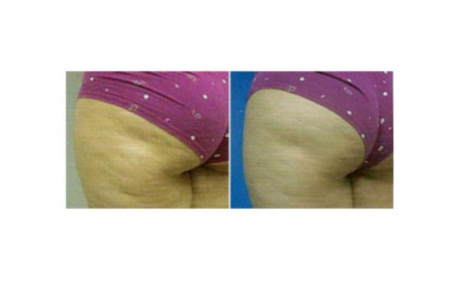 reducir la grasa corporal masculina