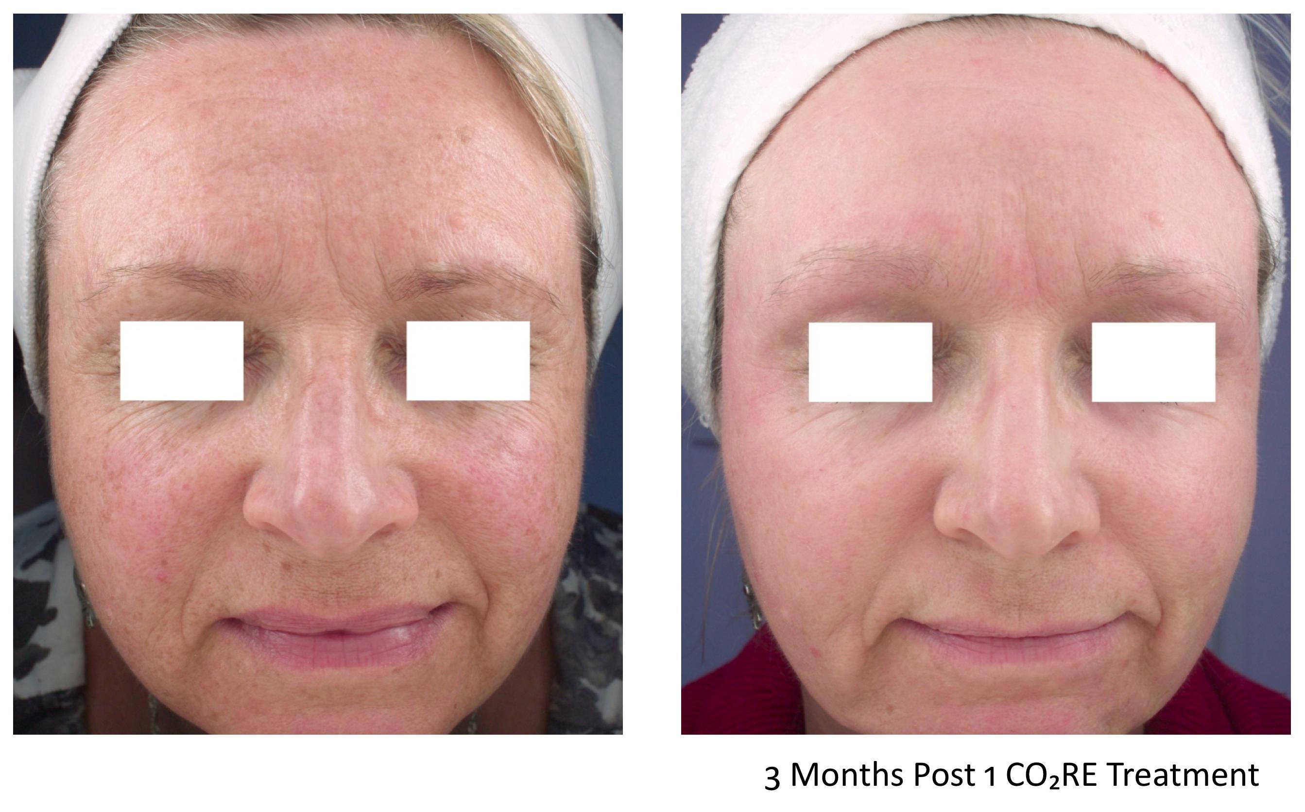 Tratamiento de venas faciales en toronto