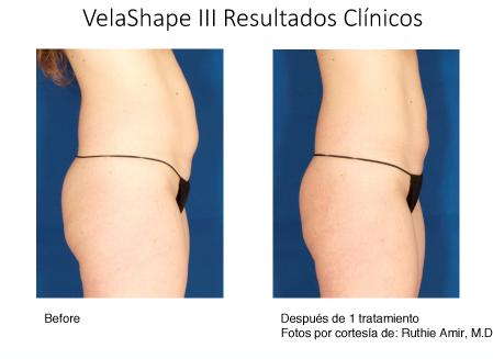 Tratamientos de las Venas - ISAPS - Espanol